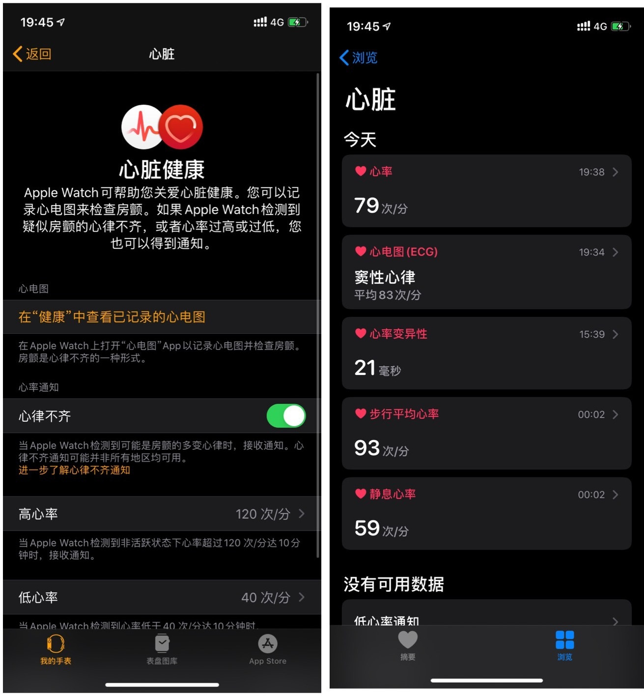 国行 Apple Watch 如何开通 ECG 功能?