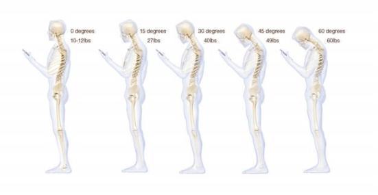 长时间低头玩手机会导致脊柱弯曲