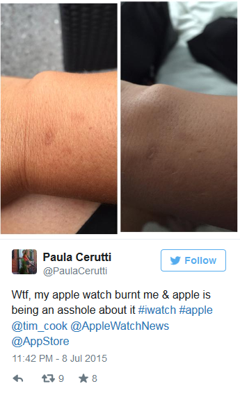 Apple Watch或过热致皮肤灼伤?你造吗?