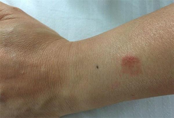 "Apple Watch 灼伤女子手腕,被告知""肯定戴错了"""