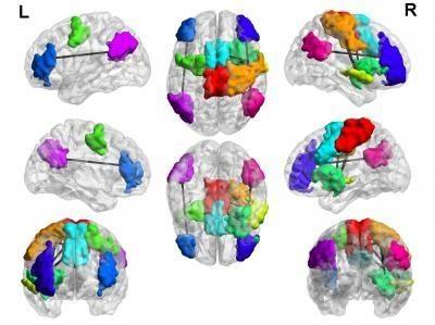 前方高能预警:沉迷游戏可能会导致脑部变异