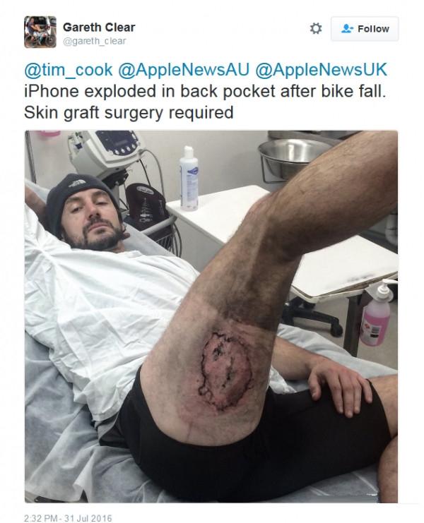 iPhone 6突然爆炸炸伤大腿   苹果如何回应