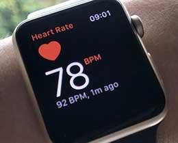 国外用户通过 Apple Watch 的 ECG 功能发现房颤,医生确诊
