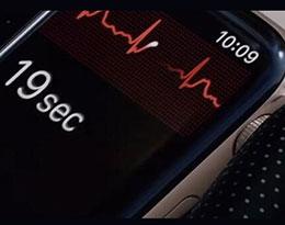 苹果 iOS 12.2 泄露:watchOS 5.2 ECG 心电图或将登陆欧洲国家