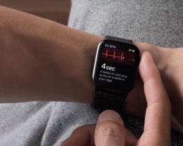 Apple Watch 的 ECG 心电图功能即将登陆加拿大
