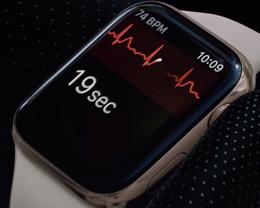 watchOS 5.3 为加拿大和新加坡带来 ECG 心电图功能