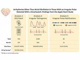 新研究表明 Apple Watch 还能检测其他类型的心律不齐