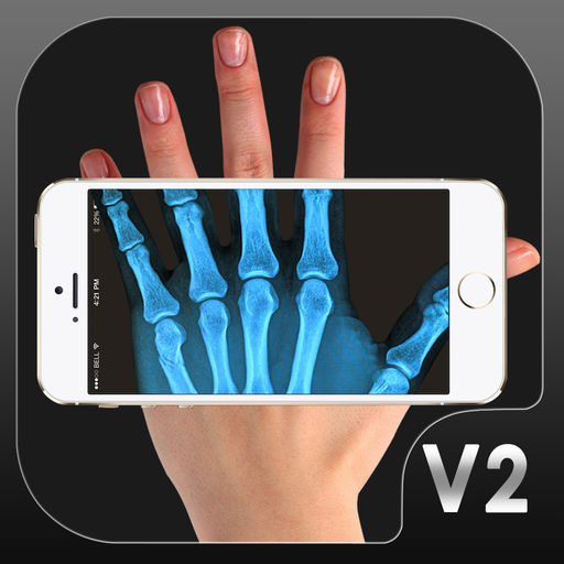 X光扫描仪2